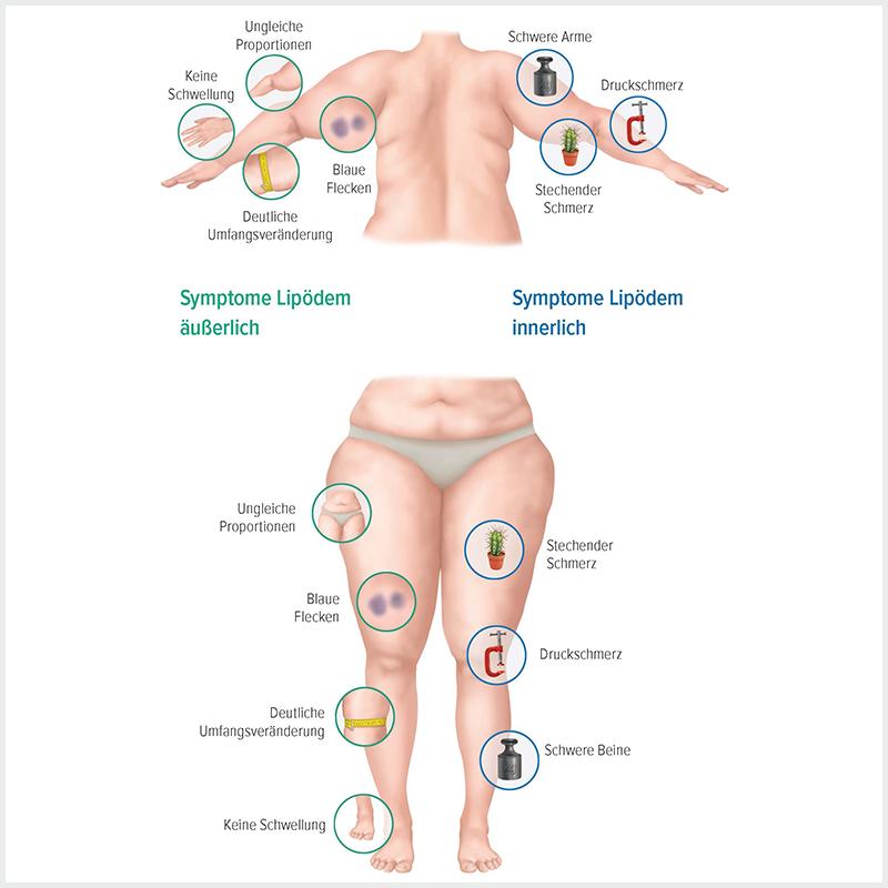 Grafische Darstellung der Symptome Lipödems