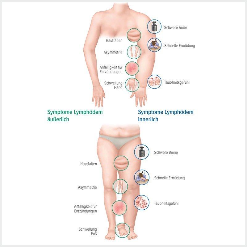 Grafische Darstellung der Symptome eines Lymphödems | deinestarkeseite.de