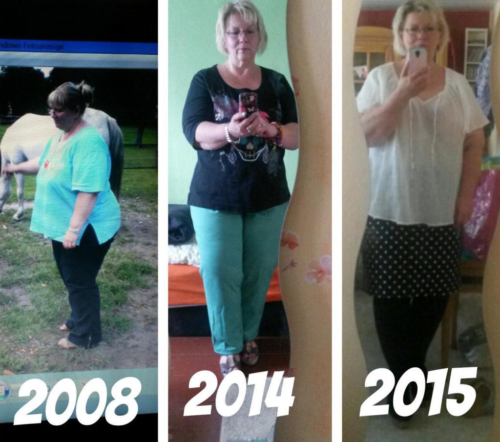 Kathrin's Leben vor der Diagnose Lipödem mit Vorher-Nachher Bildern