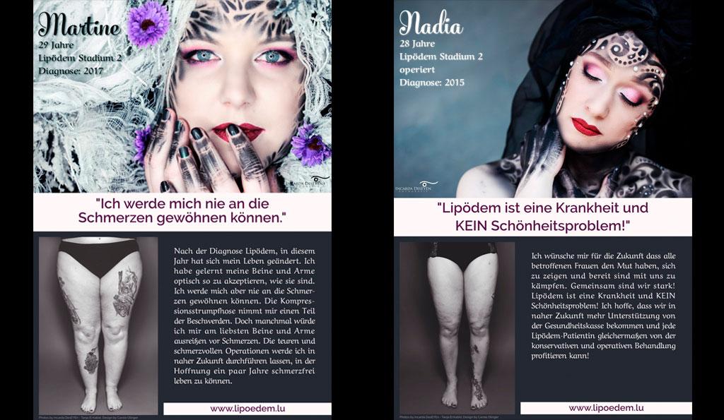 Lipödem-Kämpferinnen-Flyer aus Luxemburg