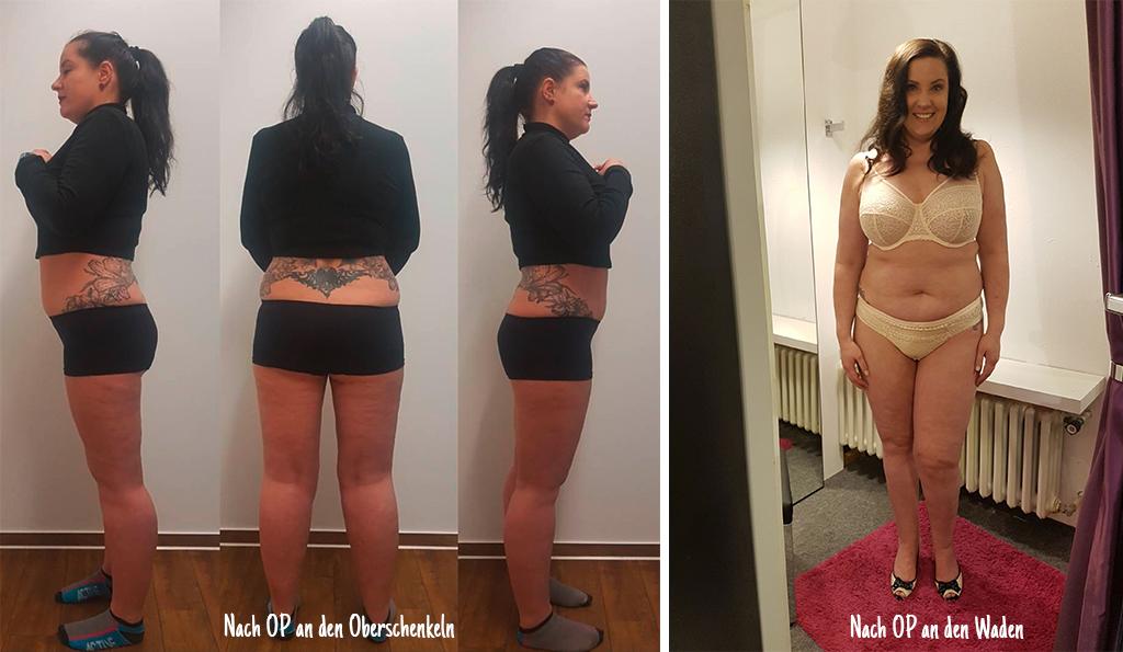 Schock nach der Liposuktion | FRAUENSACHE